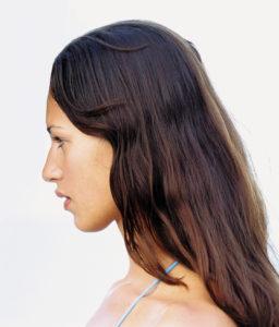 facial-rejuvenation-acupuncture