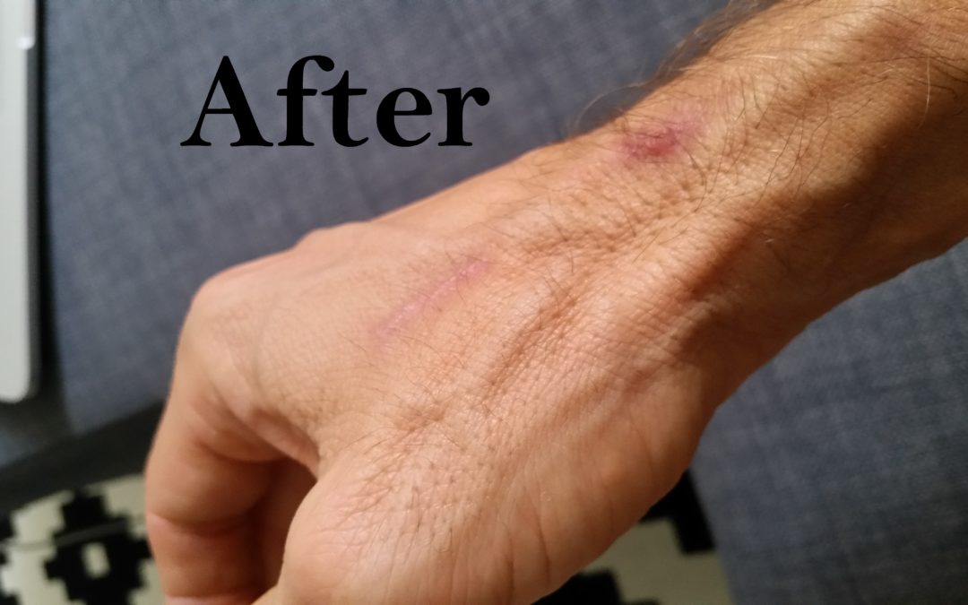Scar therapy with our RJ Physio Laser after 6 sessions, here are the results: