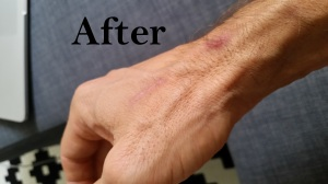 after scar